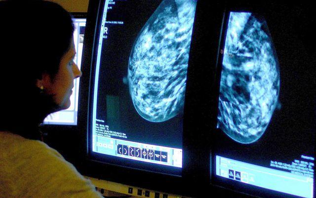 Ung thư vú có thể chữa khỏi 100% nếu được phát hiện ở giai đoạn tiền lâm sàng.