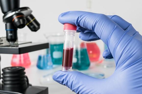 Chủng virus HIV mới có thể xác định thông qua các hệ thống sàng lọc hiện tại - ảnh minh họa từ SHUTTERSTOCK